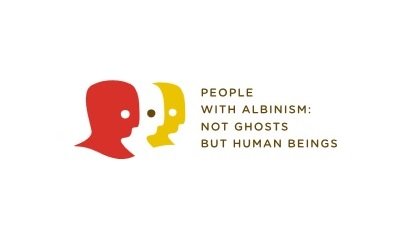 ONU – NEW Site –  Not Ghosts But Human Beings… People With Albinism