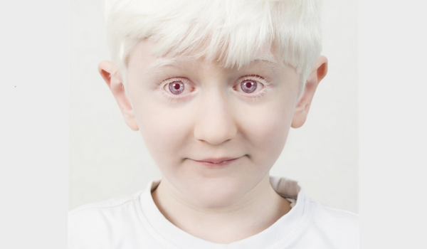 Albinismo, La Rara Bellezza E Delicata Bellezza Corteggiata Dalla Moda