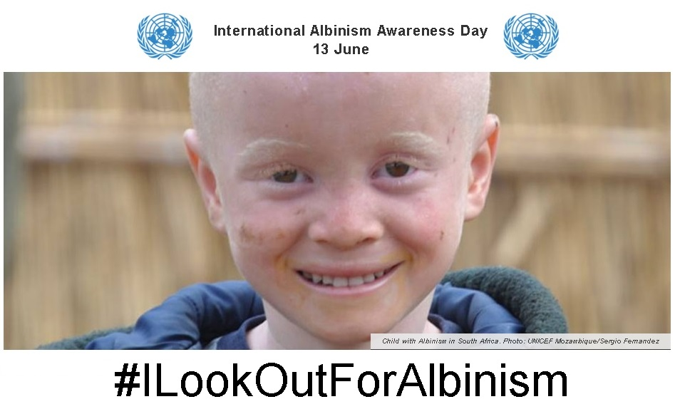 13 Giugno – ONU – International Albinism Awareness Day